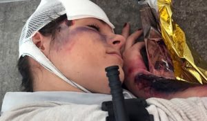 angeschossen schwere blutung