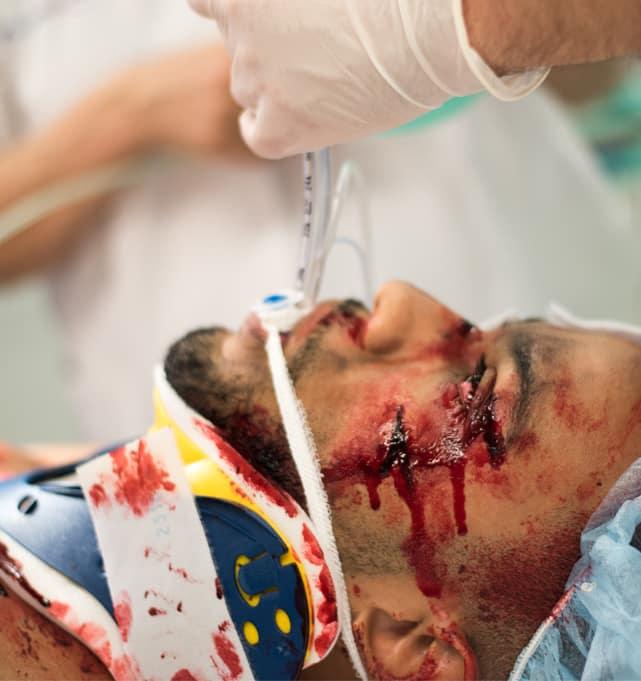 EKG-Simulator Einweisung