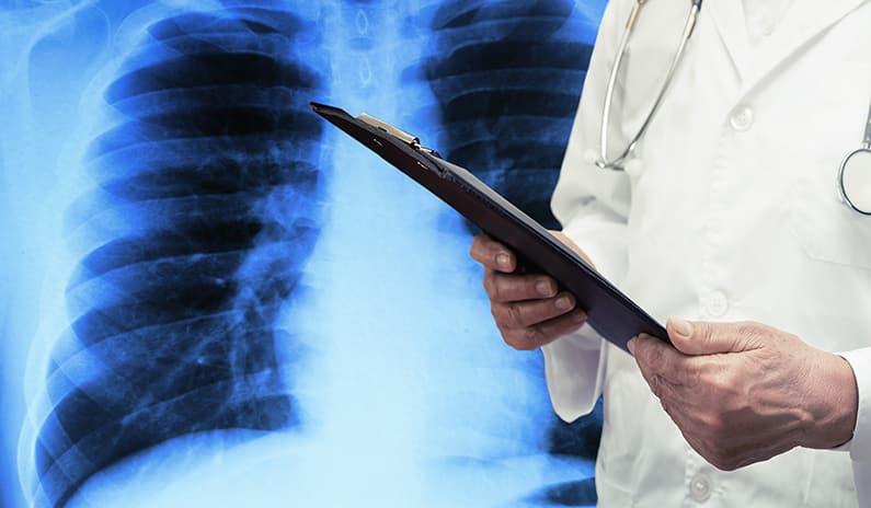 Was du als Arzt über Pneumothorax-Patienten wissen musst