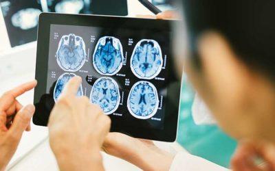 3 Dinge, die du zu Hirnblutungen als Arzt wissen musst!